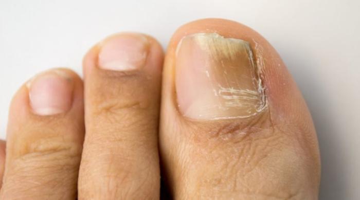 грибок ногтей на ногах