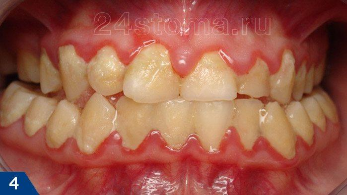 Выраженный гингивит на фоне неудовлетворительной гигиены полости рта