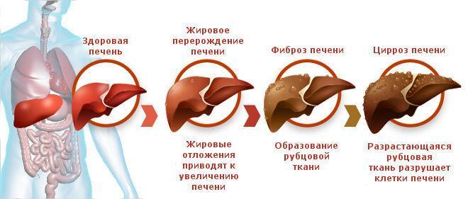 От употребления настоя пустырника в больших количествах, возникает цирроз печени