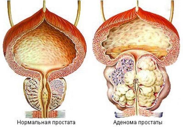гриб веселка для лечения простаты