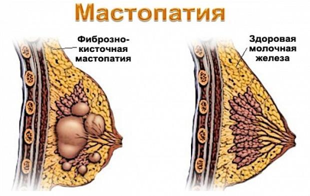 Мастопатия у женщин