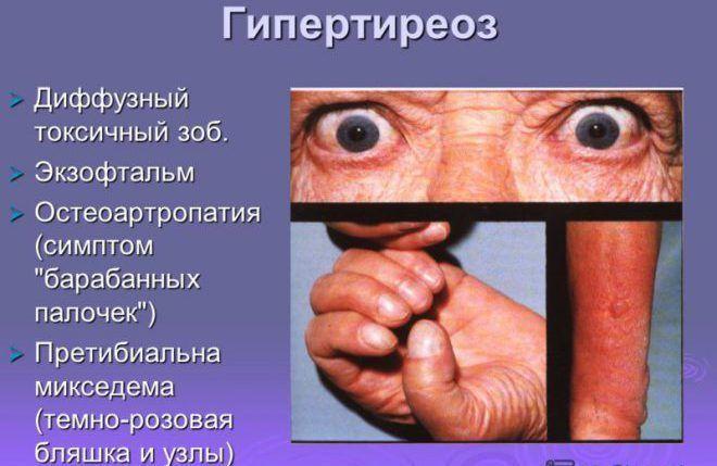Гипертиреоз Диффузный