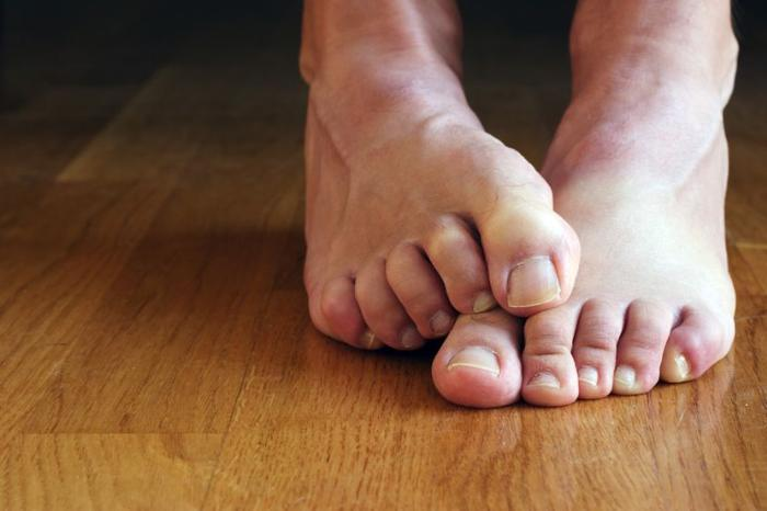 Грибок ногтей: основные симптомы