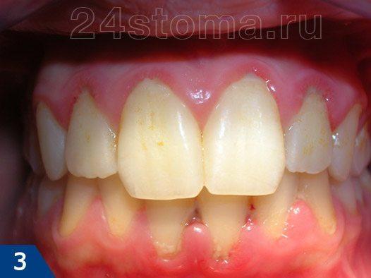 Начальная стадия гингивита на фоне скоплений мягкого микробного зубного налета у шеек зубов